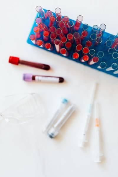 Vyšetrenie protilátok zperiférnej krvi